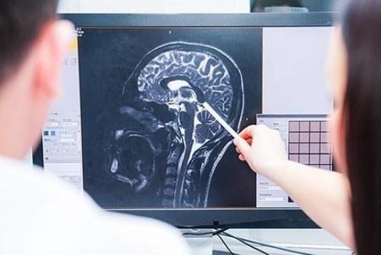 Найден способ отличить умных людей от глупых с помощью МРТ